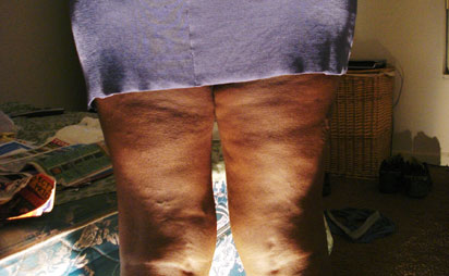 What You Need To Know About Total Knee Replacement