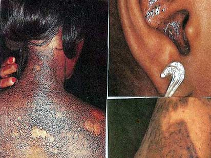 In extreme cases of skin bleaching, the skin can become multi-coloured and marred with inflammation or scarring.