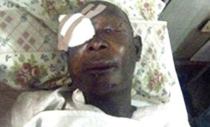 *Umar...on the hospital bed after the attack by Fulani herdsmen