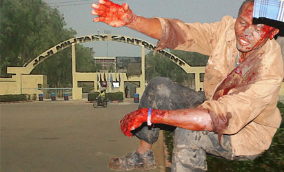 File Photo: one of the survived victims of Jaji bomb blast