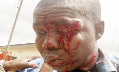 A Photojournalist with Leadership Newspaper, Benedict Uwalaka was beaten and brutalized by mortuary attendants at the Lagos State University Teaching Hospital (LASUTH)