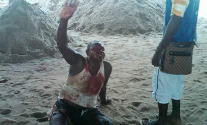 The injured victim of crying for help at the scene Photo Biodun Ogunleye