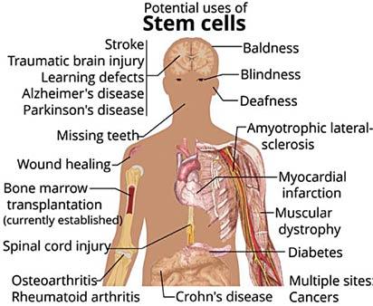 Pix:neurosciencenews.com