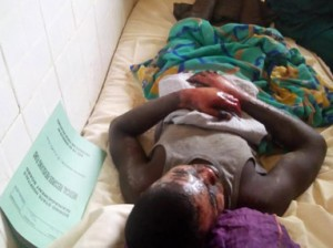 A victim of the attack in the hospital.