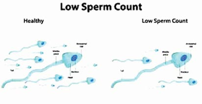 Actions to prevent decreased sperm counts