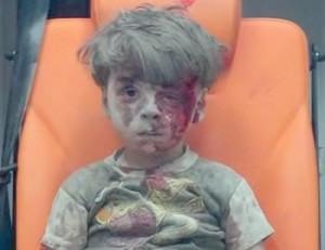 Injured boy in Aleppo