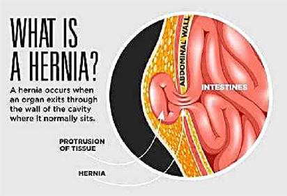 Your Hernia Will Not Heal On Its Own Vanguard News Nigeria
