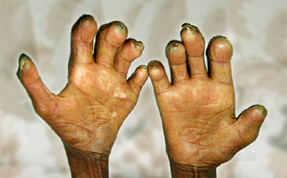 Plateau records 103 cases of leprosy in 2018 says Commissioner