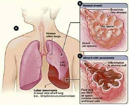 FG develops pneumonia control strategy — Minister