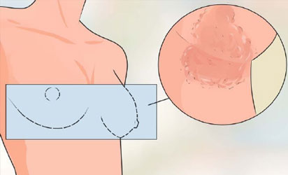 Discolored Spot on Breast - Ask The Doctor
