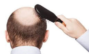 Shorter men more likely to go bald earlier