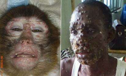 Second case of monkeypox found in UK