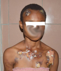 Maid,Blessing Joseph, raped by her Oga and sustained wounds from hot water poured on her by her madam