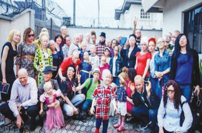 Albinism: OAM created to fight discrimination, stigma, boost self-confidence