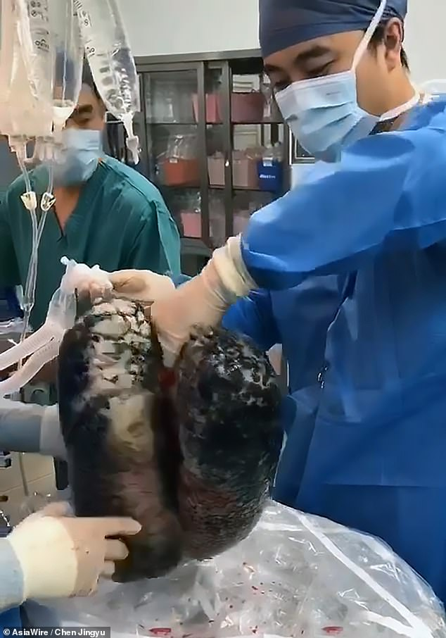 Graphics: Doctors show blackened lungs of chain smoker whohadmultiple lung diseases