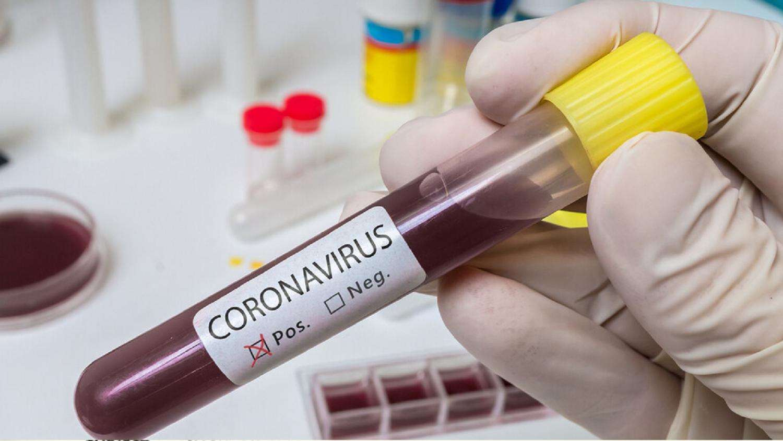 Bulgaria coronavirus update: 1 death, 2 new cases, 94 infected person