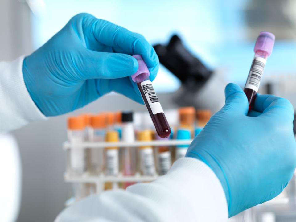 COVID-19: Scientists project 450,000 cases for Africa by May