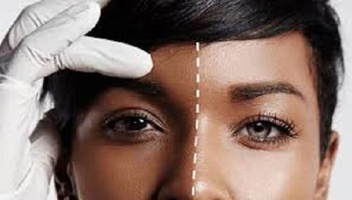 Stop bleaching or risk coronavirus disease – Medical expert