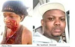 Landlord, wife slit tenant's face over unpaid rent in Lagos