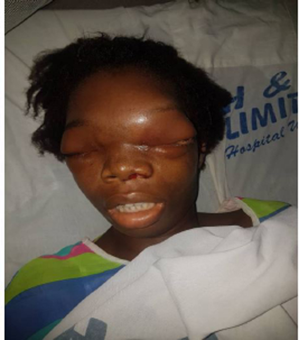 Help my daughter out of this pain, mother of ailing girl begs Nigerians