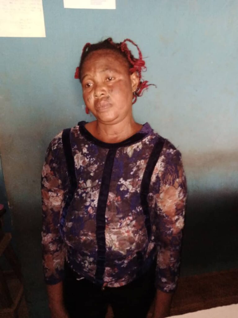For N5,000, housewife inflicts injuries on 12-yr-old boy in Ogun [Graphic]